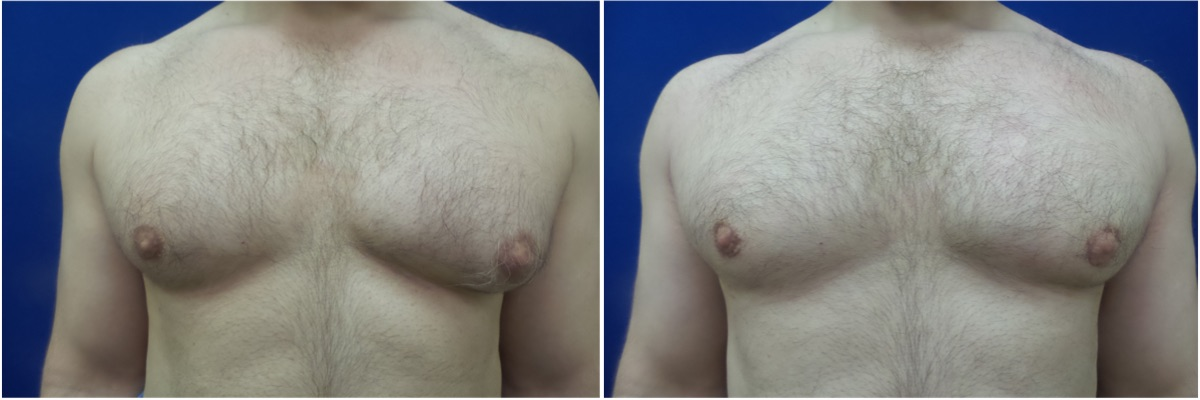 DS-gynecomastia-surgery-nyc-before-after-4-2