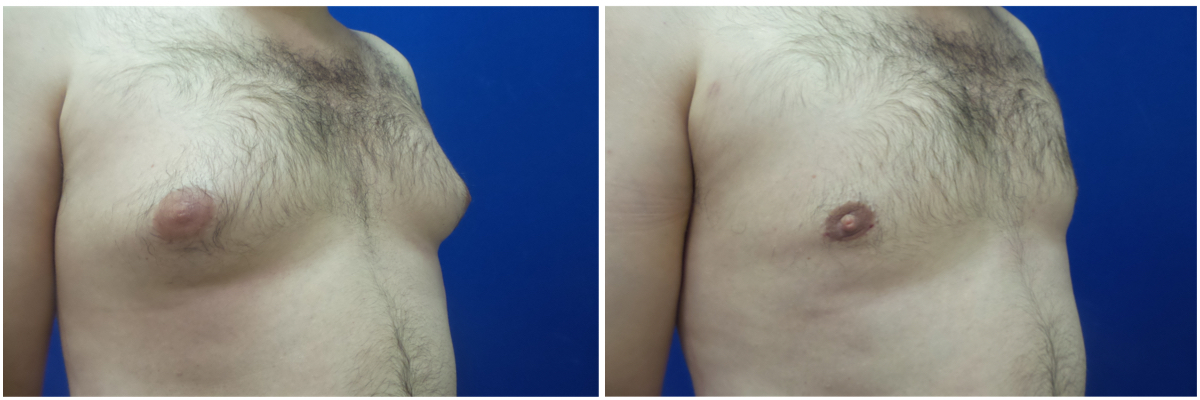 DS-gynecomastia-surgery-nyc-before-after-photo-1-3