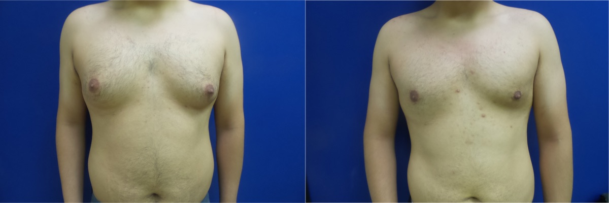 DS-gynecomastia-surgery-nyc-before-after-photo-11-1