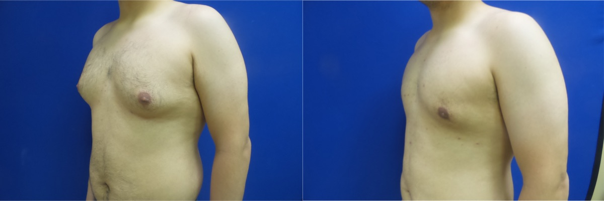 DS-gynecomastia-surgery-nyc-before-after-photo-11-2