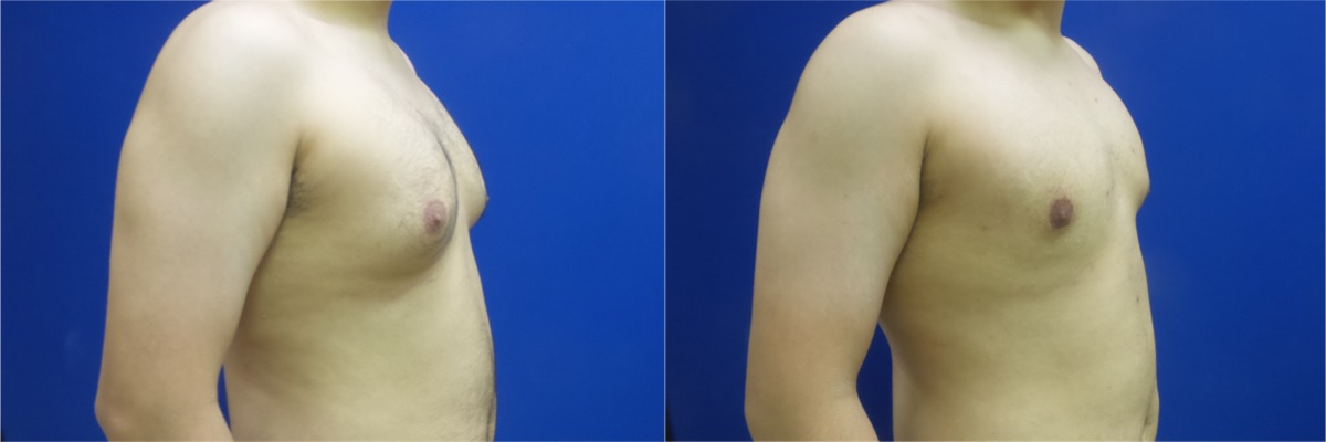 DS-gynecomastia-surgery-nyc-before-after-photo-11-3