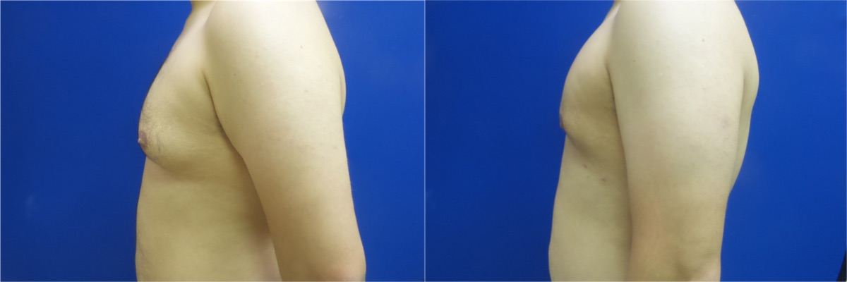 DS-gynecomastia-surgery-nyc-before-after-photo-11-4