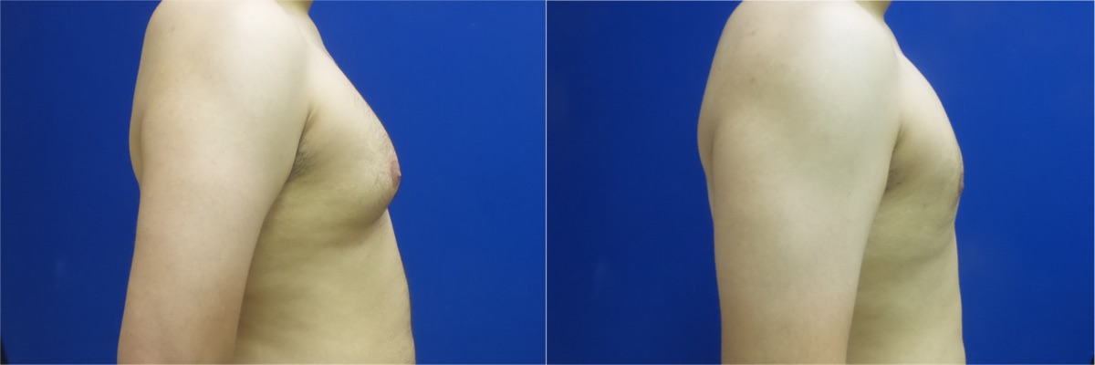 DS-gynecomastia-surgery-nyc-before-after-photo-11-5