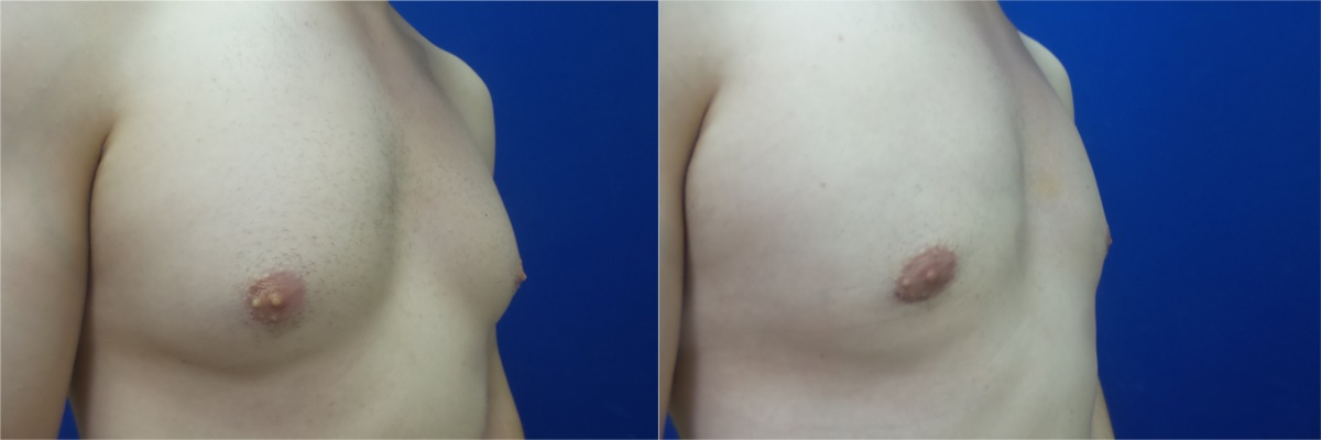 DS-gynecomastia-surgery-nyc-before-after-photo-12-5