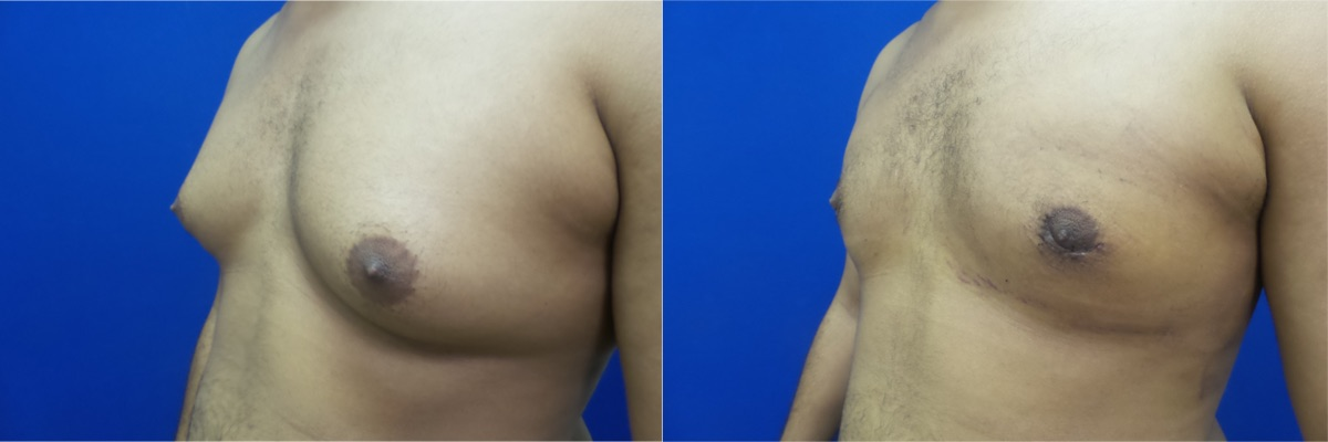DS-gynecomastia-surgery-nyc-before-after-photo-13-3