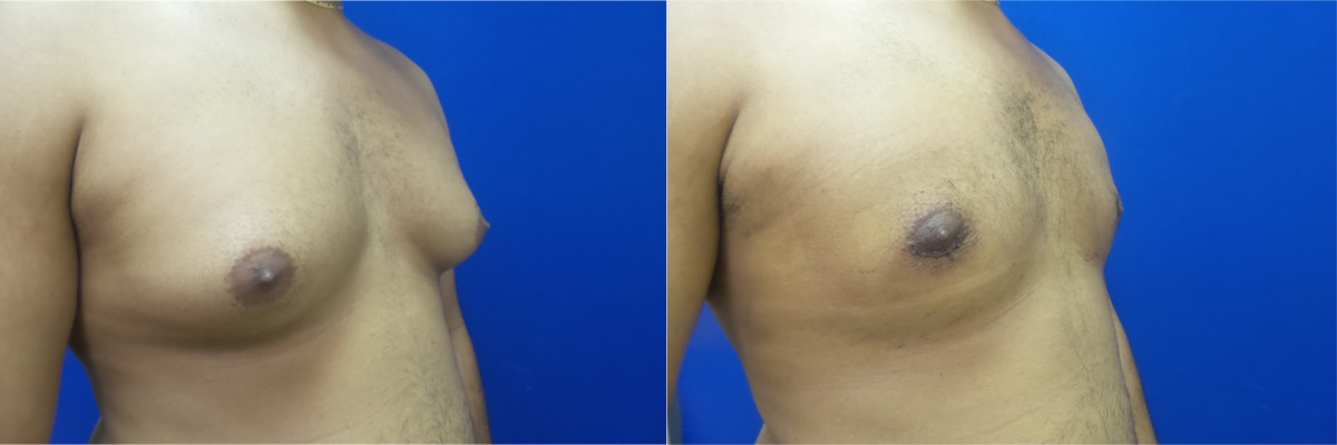 DS-gynecomastia-surgery-nyc-before-after-photo-13-5