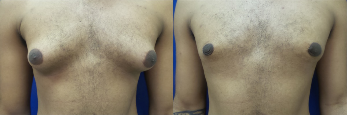 DS-gynecomastia-surgery-nyc-before-after-photo-14-1