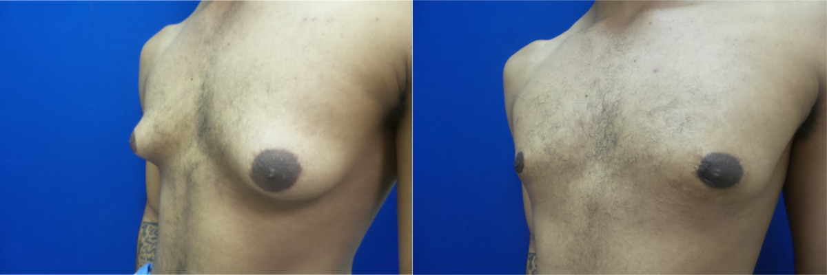 DS-gynecomastia-surgery-nyc-before-after-photo-14-2