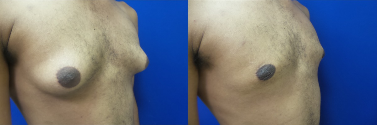 DS-gynecomastia-surgery-nyc-before-after-photo-14-4