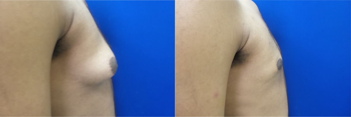 DS-gynecomastia-surgery-nyc-before-after-photo-14-5