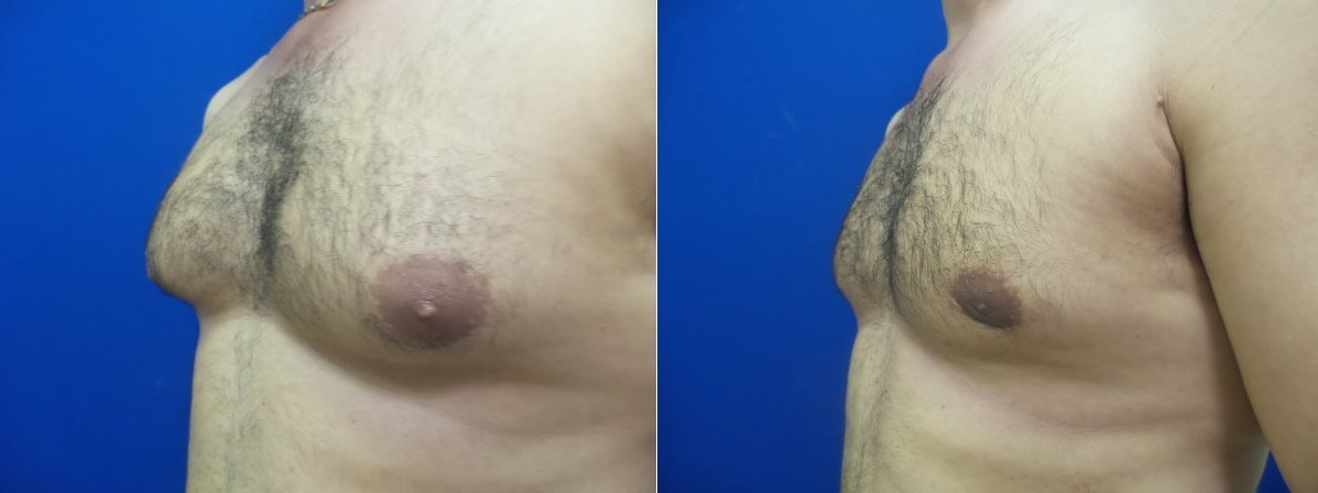 DS-gynecomastia-surgery-nyc-before-after-photo-16-2