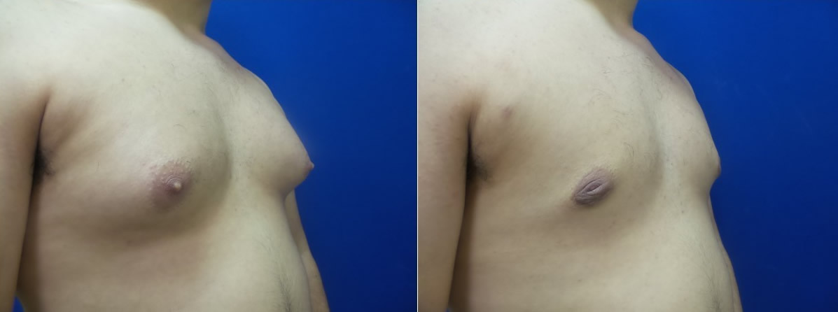 DS-gynecomastia-surgery-nyc-before-after-photo-17-2
