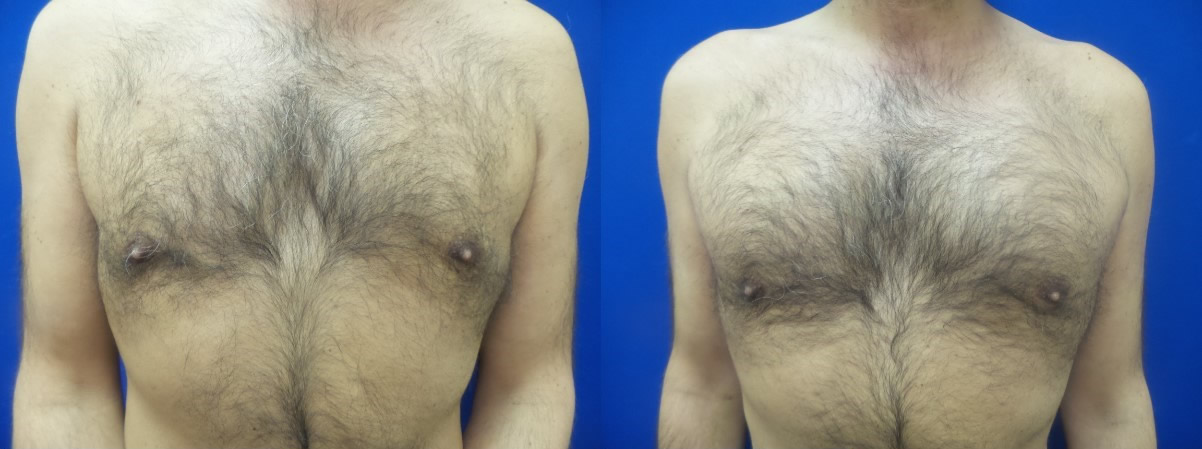 DS-gynecomastia-surgery-nyc-before-after-photo-18-1