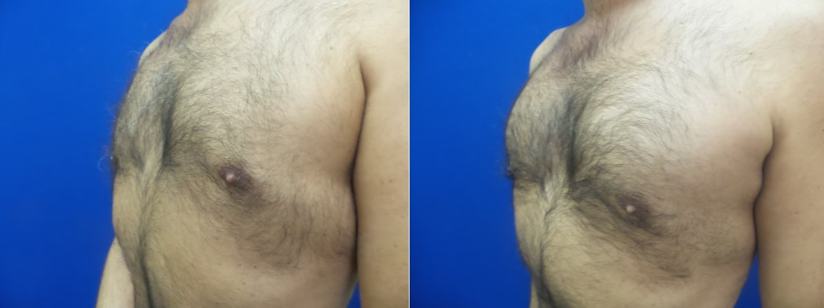 DS-gynecomastia-surgery-nyc-before-after-photo-18-2