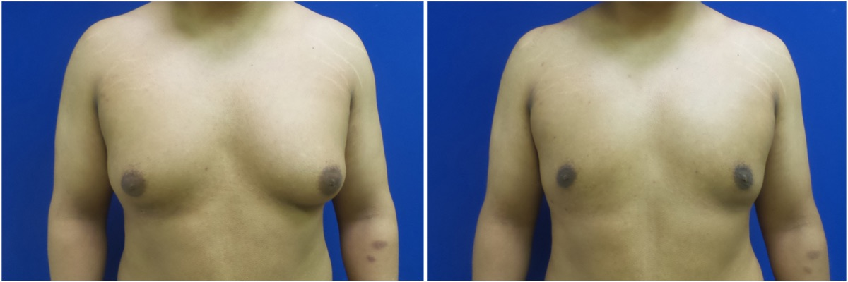 KB-gynecomastia-surgery-nyc-before-after-MP-1-1