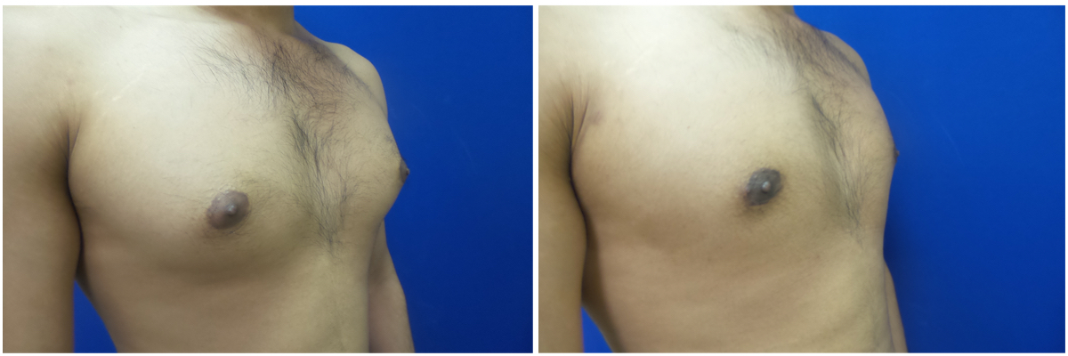 MR-gynecomastia-surgery-nyc-before-after-photo-1-5