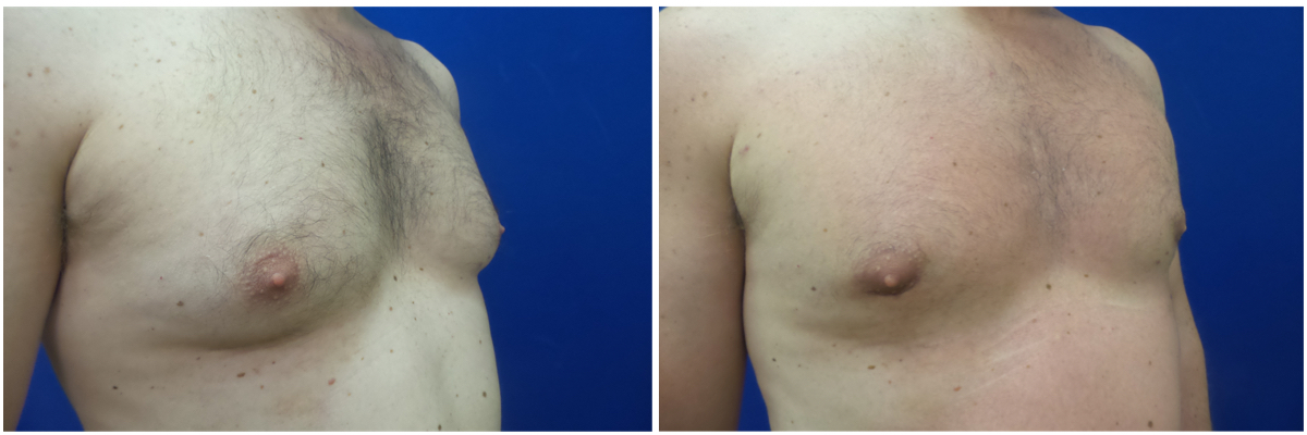 MV-gynecomastia-surgery-nyc-before-after-photo-1-3