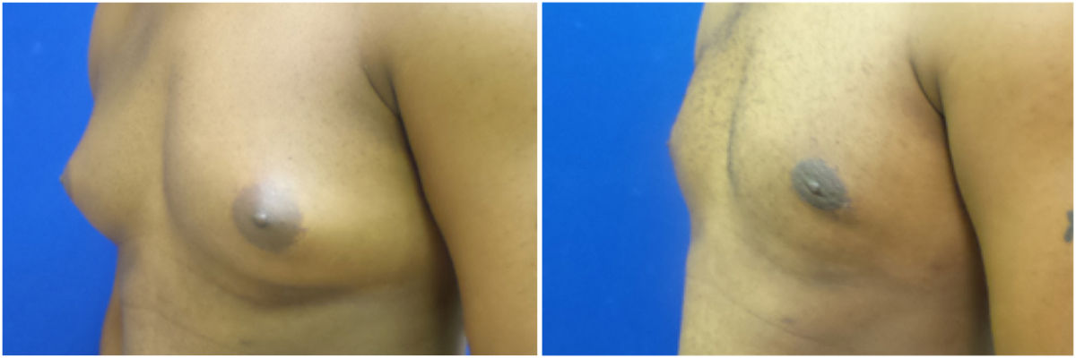 gynecomastia-surgery-nyc-before-and-after2-3