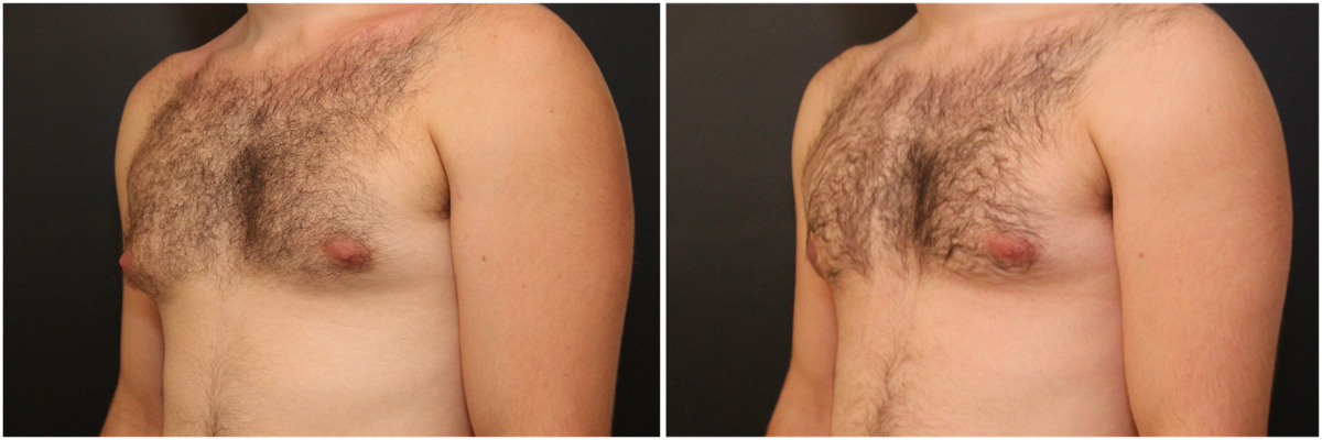 gynecomastia-surgery-nyc-before-and-after3-2