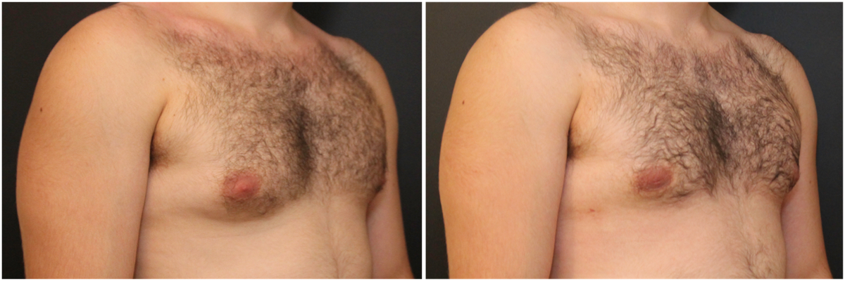 gynecomastia-surgery-nyc-before-and-after3-3