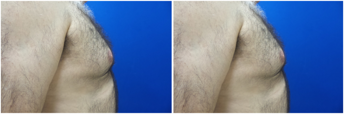 gynecomastia-surgery-nyc-before-and-after4-1