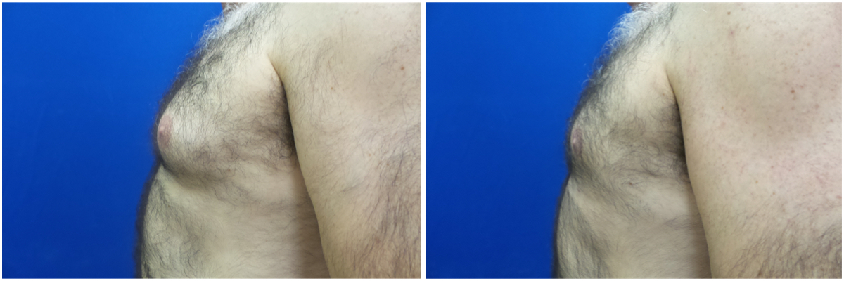gynecomastia-surgery-nyc-before-and-after4-3