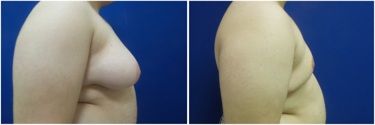 gynecomastia-surgery-nyc-before-and-after6-1