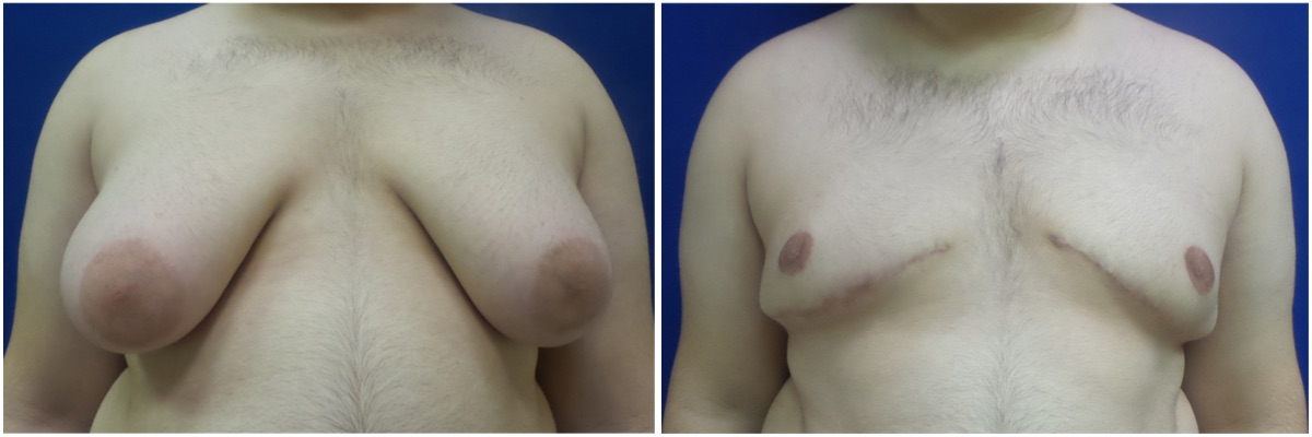 gynecomastia-surgery-nyc-before-and-after6-2