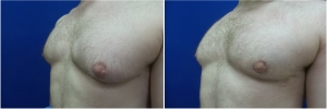 DS-gynecomastia-surgery-nyc-before-after-4-3