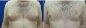 DS-gynecomastia-surgery-nyc-before-after-photo-1-1
