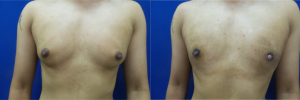 DS-gynecomastia-surgery-nyc-before-after-photo-10-1