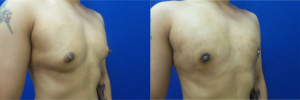 DS-gynecomastia-surgery-nyc-before-after-photo-10-2