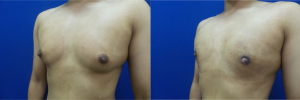 DS-gynecomastia-surgery-nyc-before-after-photo-10-4