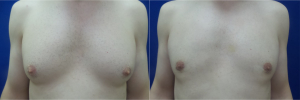 DS-gynecomastia-surgery-nyc-before-after-photo-12-1