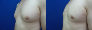 DS-gynecomastia-surgery-nyc-before-after-photo-12-4