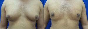 DS-gynecomastia-surgery-nyc-before-after-photo-13-1