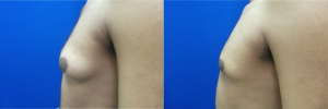 DS-gynecomastia-surgery-nyc-before-after-photo-14-3