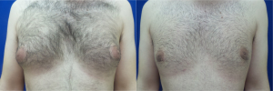 DS-gynecomastia-surgery-nyc-before-after-photo-15-1