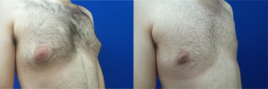 DS-gynecomastia-surgery-nyc-before-after-photo-15-3