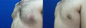 DS-gynecomastia-surgery-nyc-before-after-photo-15-5