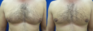DS-gynecomastia-surgery-nyc-before-after-photo-16-1