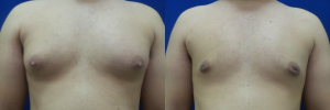 DS-gynecomastia-surgery-nyc-before-after-photo-17-1