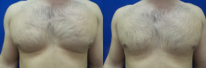 DS-gynecomastia-surgery-nyc-before-after-photo-19-1