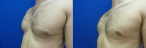 DS-gynecomastia-surgery-nyc-before-after-photo-19-2