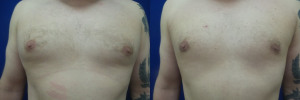 JA-gynecomastia-surgery-nyc-before-after-photo-1-1