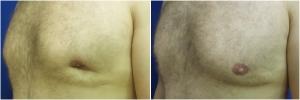 KB-gynecomastia-surgery-nyc-before-after-JL-1-1