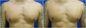 KB-gynecomastia-surgery-nyc-before-after-LB-1-1