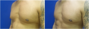 KB-gynecomastia-surgery-nyc-before-after-LB-1-2