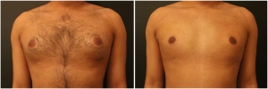 gynecomastia-surgery-nyc-before-and-after1-1