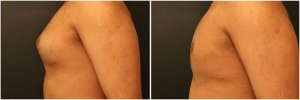 gynecomastia-surgery-nyc-before-and-after1-2